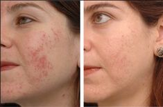 How to Get Rid for Acne Scars? (Home Remedies) Home remedies for acne scars. How to get rid of acne scars naturally? Acne scars remedies to get rid of acne scars fast. Scar Remedies, Natural Acne Remedies, Home Remedies For Acne, Acne Skin, Acne Scars, Vinegar For Acne, Remover Manchas, Back Acne Treatment, Self Esteem