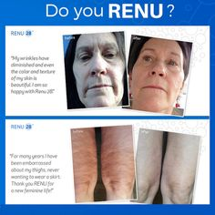 Is RENU part of your daily routine?  Renu 28 is the most advanced Anti-Aging Skin Therapy available today. www.newhealth4u.net #RENU28