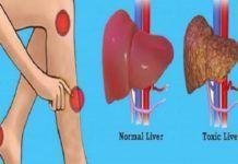 Ótima receita caseira para esteatose hepática (gordura no fígado) - Cura Pela Natureza Troubles Digestifs, Liver Detox, Liver Cleanse, Cleanse Detox, Liver Disease, Disease Symptoms, Heart Disease, Fatty Liver, Warning Signs