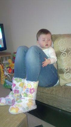 #humor Vaya Face!: El extraño caso del bebé con piernas de gigante
