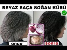 Beyaz Saça Tamamen Doğal Karışımla Son Veren Çözüm %100 İşe Yarıyor - YouTube Pink Hair Highlights, Light Pink Hair, Skin Spots, Medicinal Plants, Natural Medicine, Herbalism, Hair Beauty, Youtube, Health