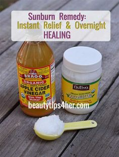 Heal Sunburn Overnight with Two Simple Ingredients (apple cider vinegar and coconut oil) Health And Beauty Tips, Health Tips, Health And Wellness, Sunburn Remedies, Health Remedies, Natural Sunburn Remedy, Cold Remedies, Homeopathic Remedies, Hair Remedies