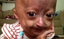 Raise Money For Medical Expenses To Support Adalia Rose Williams