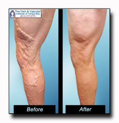 We are so happy that we were able to help this patient get rid of his varicose veins using non-invasive laser vein treatment.  It is rewarding to know that we are making a difference in our patients' lives and that our vein treatment allows our patients to feel great again!  See more vein treatment before and after pictures at: https://www.tampavascularsurgeon.com/tampa-varicose-vein-removal-pictures/  #VeinClinicTampa #VeinDoctorTampa #VeinTreatmentTampa #VeinTreatmentBeforeAndAfterPictures