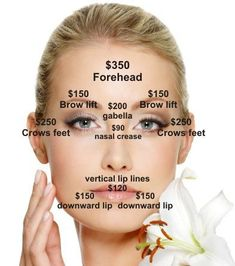 Botox injection sites for migraines diagram Cosmetic Surgery vs Botox Injection Sites, Botox Injections, Botox Fillers, Dermal Fillers, Face Fillers, Relleno Facial, Botox Brow Lift, Muscle Disorders, Facial Aesthetics