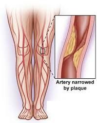 Why tired and heaviness in legs may be your body warning you of a coming heart attack at any age