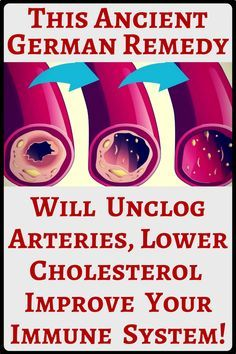If you truly want to improve your immune system and lower cholesterol, unclog your arteries as well as detox your liver, this remedy shown below is a perfect choice. The preparation of the same is very simple as well as very economic. Cholesterol Symptoms, Lower Your Cholesterol, Cholesterol Lowering Foods, Cholesterol Levels, Cardio, Health And Wellness, Health Tips, Health Articles, Health Care