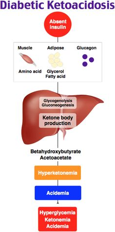 diabetic ketoacidosis essay Below is an essay on diabetic ketoacidosis from anti essays, your source for research papers, essays, and term paper examples diabetic ketoacidosis even though the blood is loaded with glucose, the cells go into a starvation mode.