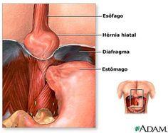 Hérnia de Hiato ObesoGastro Clínica de Doenças do Aparelho Digestivo e Endoscopia