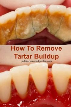 How To Remove Tartar Buildup #removetartarfromteethathome