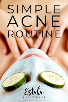 A simple acne routine and skincare regimen for hormonal acne. Learn how to how t… A simple acne routine and … Oily Skin Care, Acne Prone Skin, Skin Care Regimen, Skin Care Tips, Acne Skin, Dry Skin, Acne Face, Skin Care Routine For 20s, Skin Routine