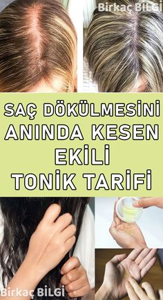 Beauty Discover Organic Homemade Tonic Recipe for Hair Loss Doğal Tarif Organic Homemade Olay Diet And Nutrition Genetics Hair Loss Beauty Skin Hair Care Health Fitness Weight Loss Baking Soda For Hair, Baking Soda Shampoo, Organic Homemade, Natural Health Remedies, Hair Loss Treatment, Olay, Hair Health, Hair Growth, Beauty Skin