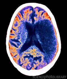 Stroke, CT brain scan