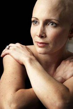 Olympic medal winner Shannon Miller shown during her cancer treatment, Spring 2011.