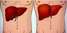 Non-alcoholic fatty liver disease, or NAFLD as it is also called, is one of the primary causes for liver diseases. Here we give you a fatty liver diet that will help you control such ailments. Fatty Liver Diet, Healthy Liver, Liver Detox Symptoms, Liver Disease Treatment, Liver Spot, Natural Liver Detox, Liver Failure, Salud Natural, Liver Cleanse