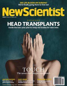 head transplants