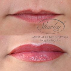 Makijaż permanentny ust Spa Day, Clinic, Medical, Active Ingredient