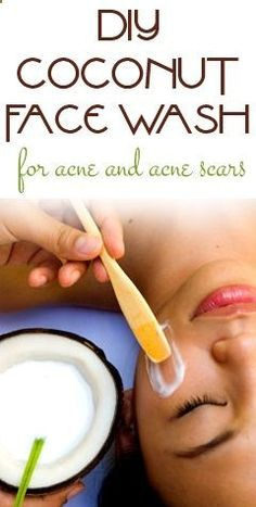 Coconut Face wash for acne and scars 1 tablespoon of coconut oil 3 drops tea tree oil 2 drops lavender or neem oil For oily skin add a squeeze of lemon juice Optional: a little bit of honey Mix together and cleanse your face as you normally would. Leave it on for a minute.