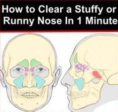 Clear a Stuffy or Runny Nose In 1 Minute