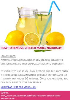 How to remove stretch marks naturally - Lemon juice - Click for more: http://www.urbanewomen.com/how-to-remove-stretch-marks-naturally.html