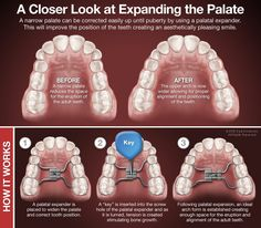 Wheeler Orthodontics' Blog: What to Expect With Your Child's Palatal Expander