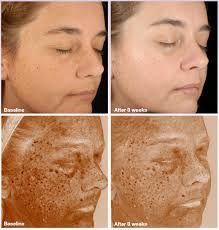See what using the Vivite Skin Care line can do for your skin! We offer genuine Vivite products direct from the manufacturer, Allergan. Come by or check out our website to learn more!  www.beauty-redefined.com