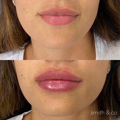 Facial Fillers, Botox Fillers, Lip Fillers, Danielle Smith, Facial Aesthetics, Lip Augmentation, Makeup Before And After, Cosmetic Procedures, Makeup