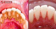 Osad nazębny jest pierwszym widocznym objawem złego stanu zębów. Uszkadza szkliwo zębów i przyspiesza rozwój próchnicy. Z pewnością jak większość...