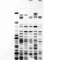 dna sequence analysis - Google Search