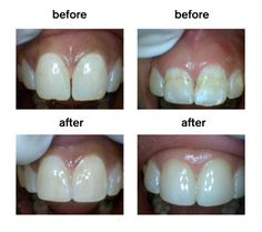 before after cosmetic dentistry............