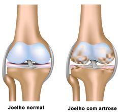 joelho normal e joelho com artrose