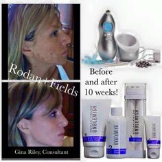Adult cystic acne?? UNBLEMISH from Rodan + Fields.   Let's get you started today Candacegardner.myrandf.com