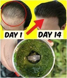 How To Grow Hair Faster – Best Hair Loss Balding Treatment Hair Remedies For Growth, Hair Growth Treatment, Hair Growth Tips, Hair Loss Remedies, Hair Thickening Remedies, Healthy Hair Remedies, Natural Remedies, Stop Hair Loss, Prevent Hair Loss