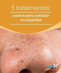 5 tratamientos caseros para combatir las espinillas Las espinillas son una forma de acné que se produce cuando los poros de la piel se obstruyen a causa de la suciedad, el sebo y las células muertas.