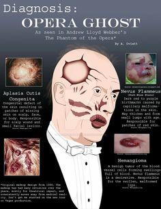 Phantom of the opera diagnosis