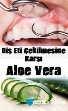 Diş eti çekilmesine karşı Aloe Vera! Mutlaka denenmesi gereken doğal bir #tedavi #aloevera #dişetleri #doğaltedaviler #dişetisorunları #dişetihastalıkları #sağlıkansiklopedi