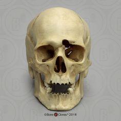 Human Male Skull with a Gunshot Wound - Bone Clones, Inc. Skull Anatomy, Human Anatomy, Skull Reference, Skeleton Bones, Human Skull, Clay Art, Fossils, Skulls, Creepy