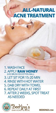 Raw Honey for Acne Treatment? - BeeKing's Raw Honey is perfect for that.
