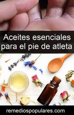 Aceites esenciales para el pie de atleta Leo, Christmas, Athlete's Foot, Feet Nails, Remedies, Health, Hands, Beauty, Xmas