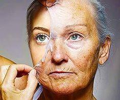 Auckland Grandma, 74, Shocks Doctors: Forget Botox, Do This