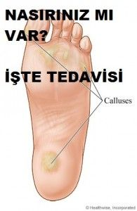 Callus treatment - Welcome Fitness Nutrition, Diet And Nutrition, Fitness Tips, Health Tips, Health And Wellness, Hair Removal Spray, Health Images, Yoga Posen, Der Arm