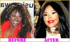 Lil Kim Plastic Surgery before and after Lil Kim Plastic Surgery Lil Kim Plastic Surgery, Celebrity Plastic Surgery, Search, Celebrities, Beauty, Rage, Celebs, Beleza, Searching