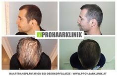 Haartransplantation Hairstyles With Bangs, Short Hair Styles, Curly, Abs, Shaved Heads, Gray Hair, Losing Hair, Hair Colors, Hungary