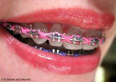 Cute braces colors for teens- girls