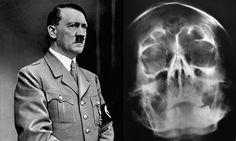 Adolf Hitler's Skull X-Ray Creates Bidding War - http://www.warhistoryonline.com/war-articles/adolf-hitlers-skull-x-ray-creates-bidding-war.html