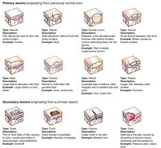 Common skin lesions.