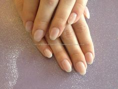 Natural gel overlay