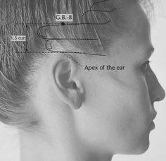 tinnitus point