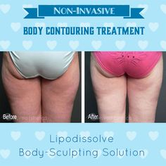After lipodissolve lipodissolve pinterest ultrasonic cavitation is similar to mesotherapy or lipodissolve in that it is a treatment for cellulite called localized adiposity solutioingenieria Choice Image