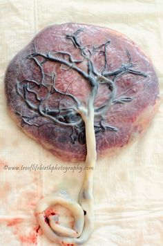 Make sure and contact a local provider to have your placenta processed. #placenta #treeoflife